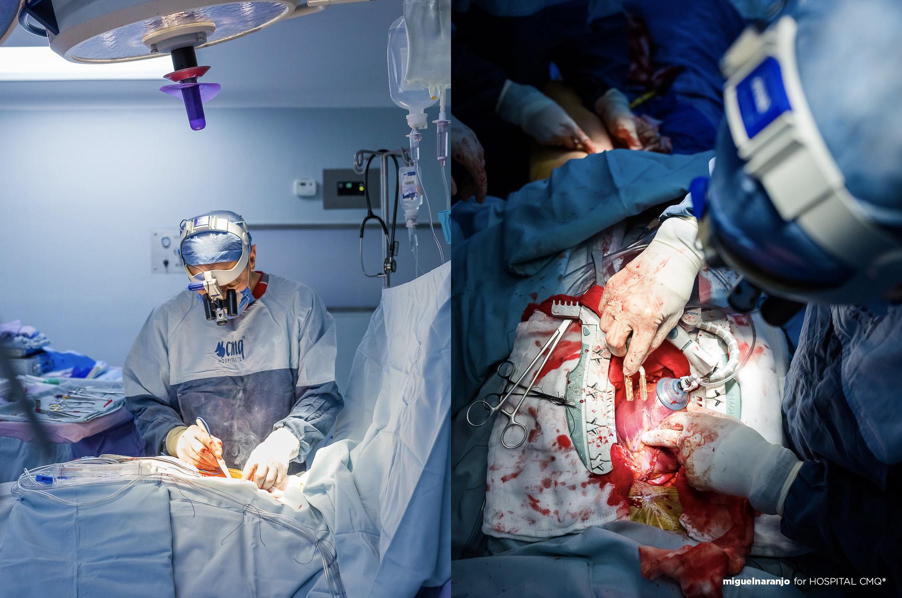Cirugía de corazón abierto en Hospital CMQ Premiere Puerto Vallarta